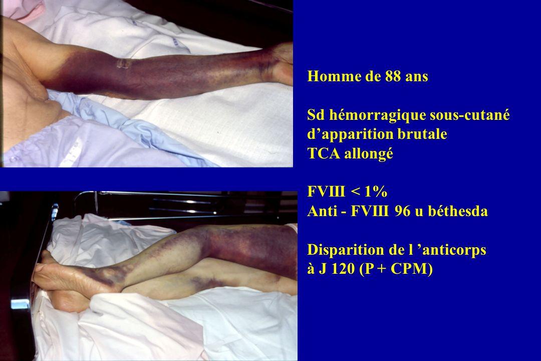 Homme de 88 ans Sd hémorragique sous-cutané. d'apparition brutale. TCA allongé. FVIII < 1% Anti - FVIII 96 u béthesda.