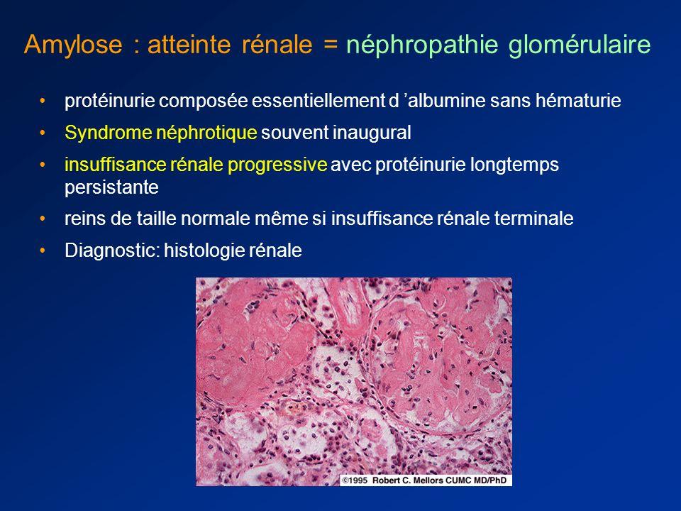 Amylose : atteinte rénale = néphropathie glomérulaire