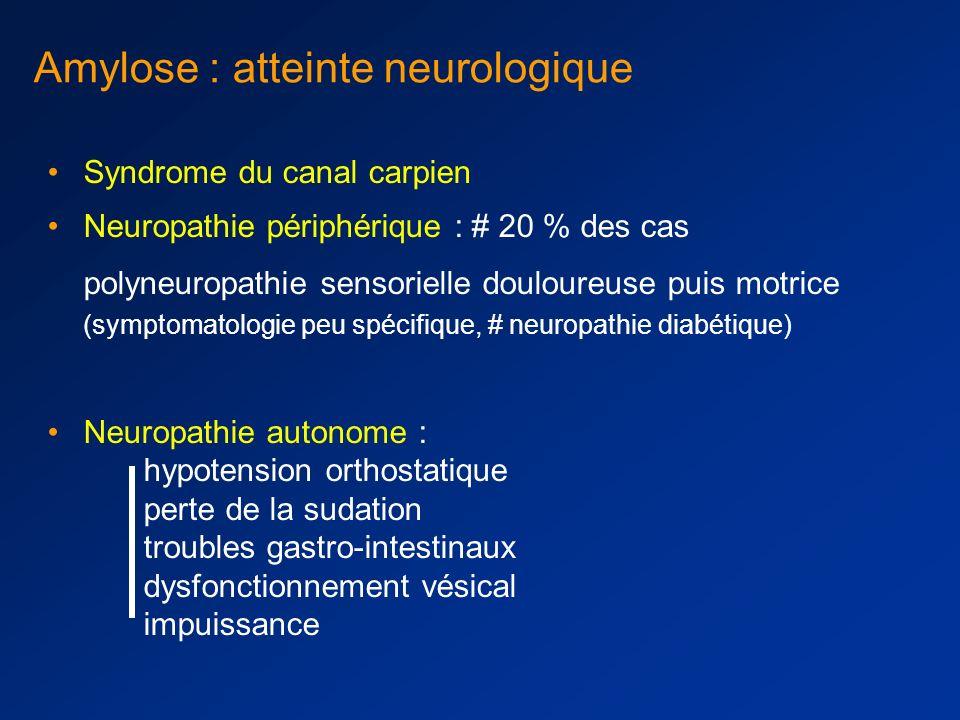 Amylose : atteinte neurologique