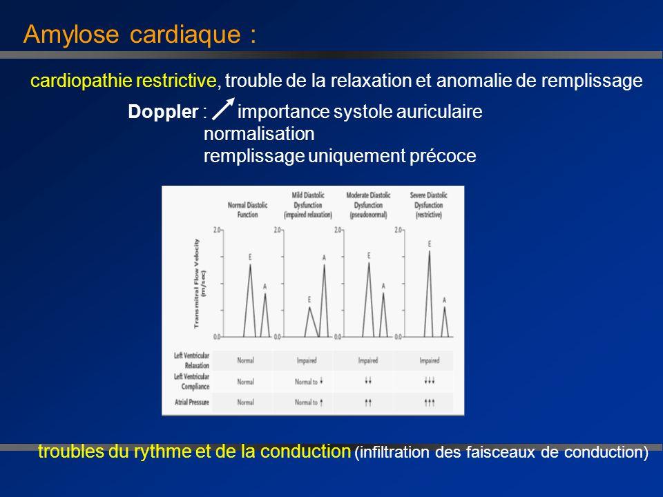 Amylose cardiaque :cardiopathie restrictive, trouble de la relaxation et anomalie de remplissage.