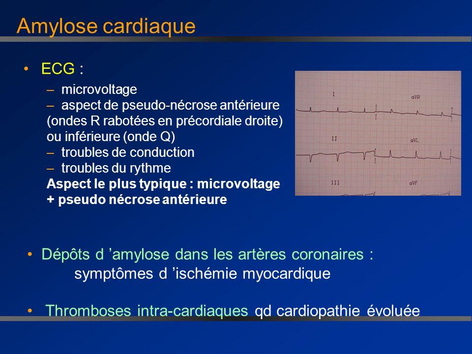 Amylose cardiaque ECG :