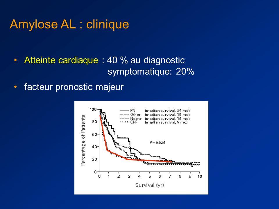 Amylose AL : clinique Atteinte cardiaque : 40 % au diagnostic symptomatique: 20% facteur pronostic majeur.