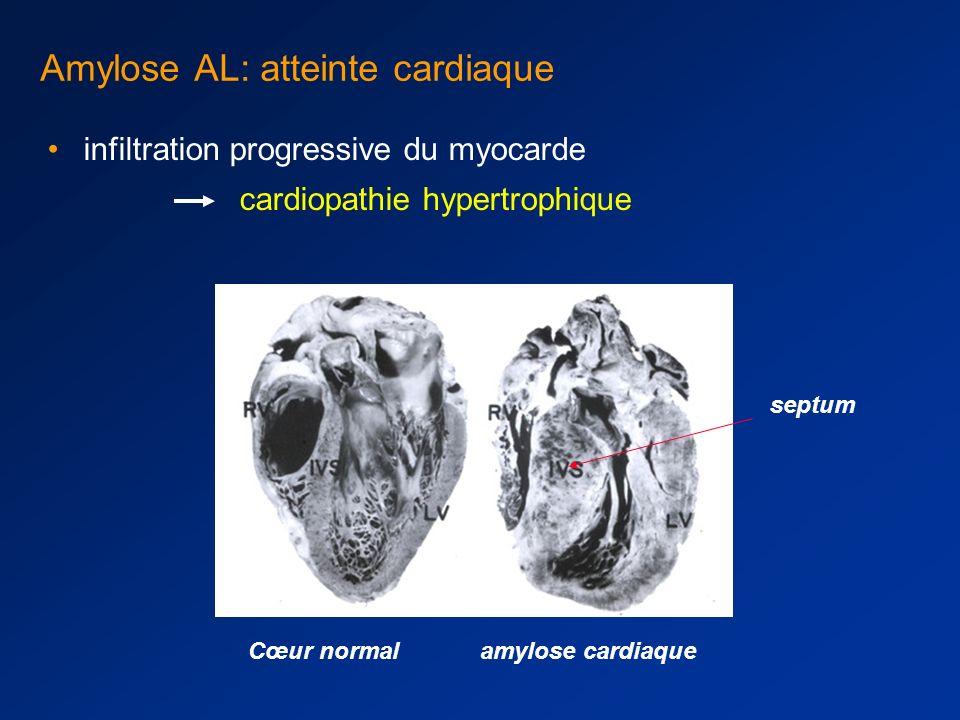 Amylose AL: atteinte cardiaque