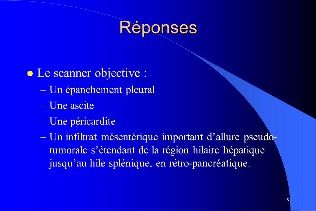 Réponses Le scanner objective : Un épanchement pleural Une ascite