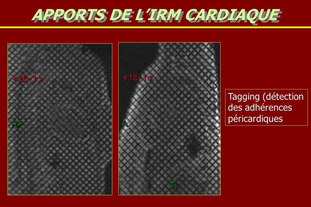 APPORTS DE L'IRM CARDIAQUE