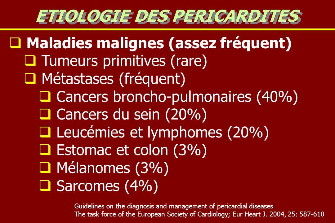 ETIOLOGIE DES PERICARDITES