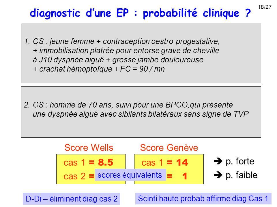 diagnostic d'une EP : probabilité clinique