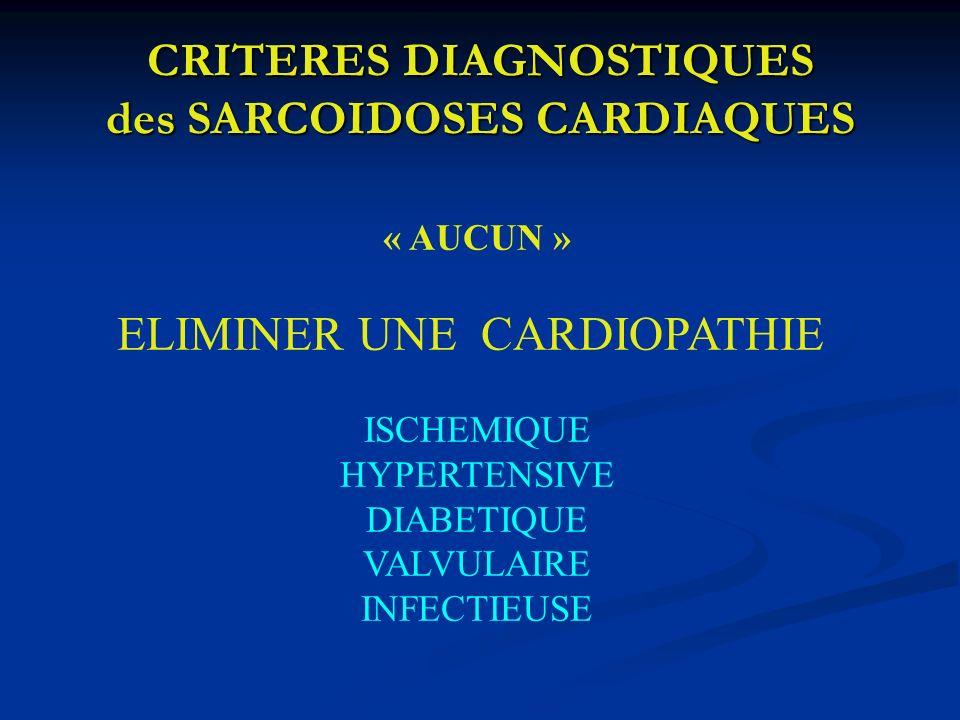 CRITERES DIAGNOSTIQUES des SARCOIDOSES CARDIAQUES