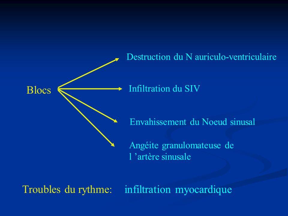 Troubles du rythme: infiltration myocardique