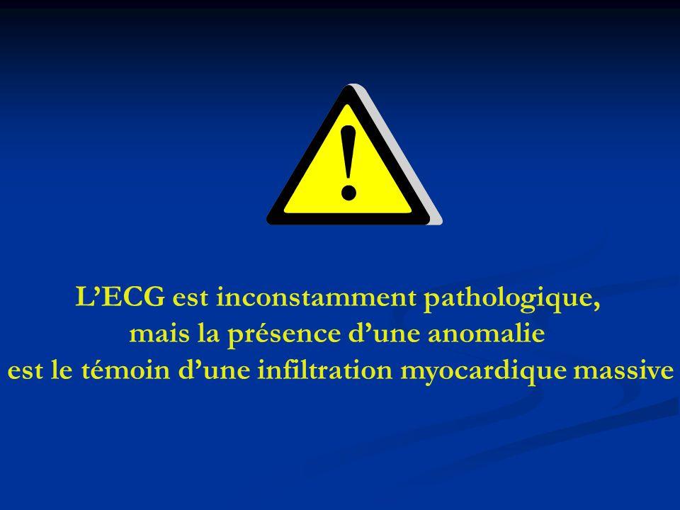 L'ECG est inconstamment pathologique, mais la présence d'une anomalie