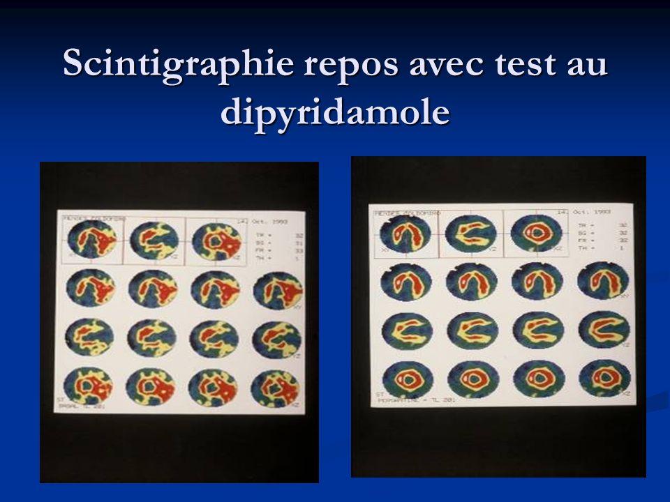 Scintigraphie repos avec test au dipyridamole
