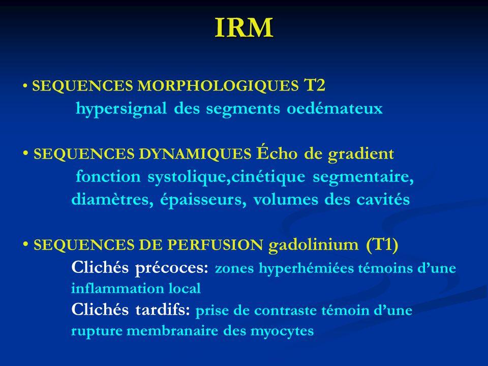 IRM hypersignal des segments oedémateux