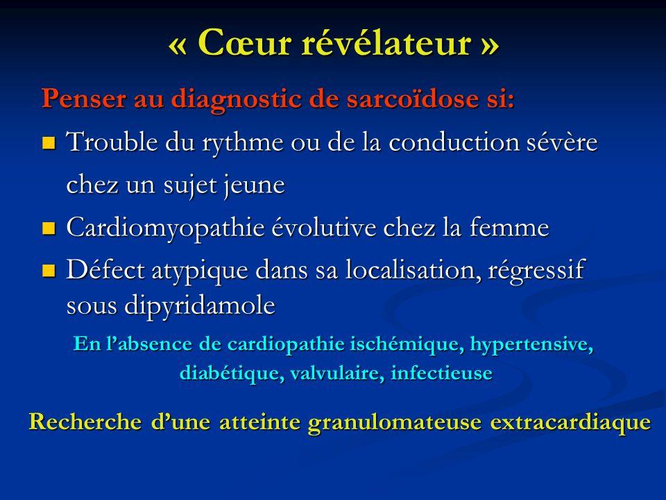 « Cœur révélateur » Penser au diagnostic de sarcoïdose si: