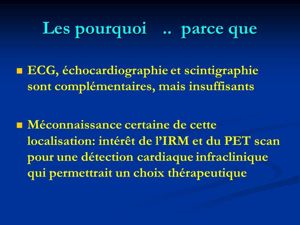 Les pourquoi .. parce que ECG, échocardiographie et scintigraphie sont complémentaires, mais insuffisants.