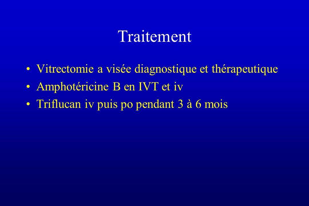 Traitement Vitrectomie a visée diagnostique et thérapeutique