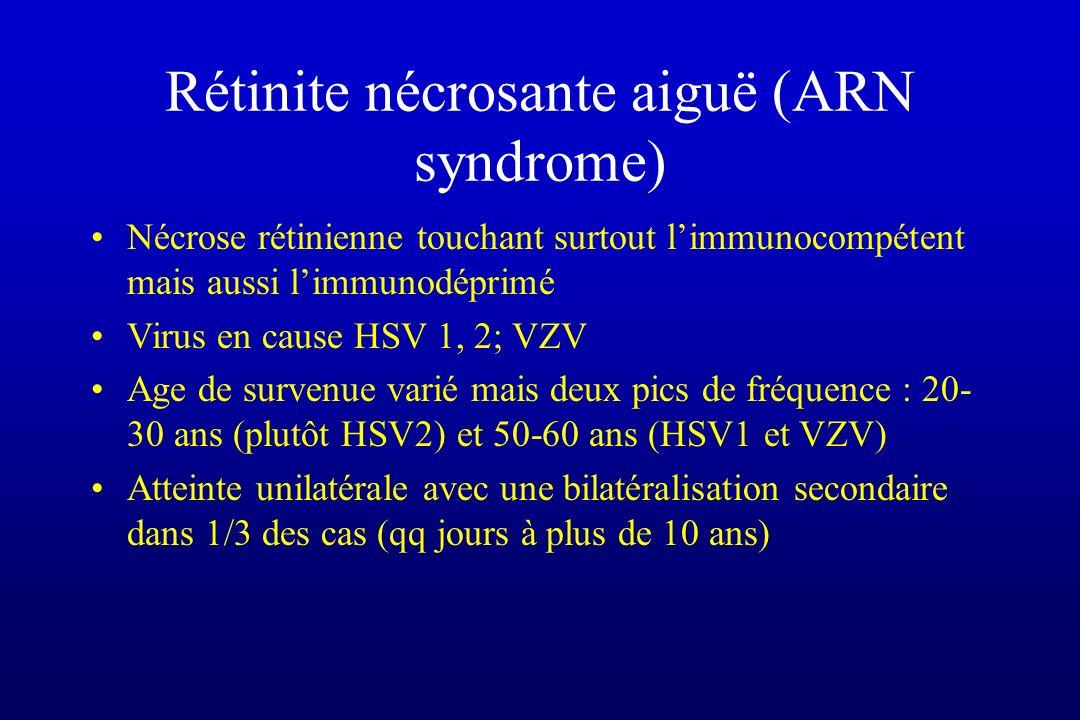 Rétinite nécrosante aiguë (ARN syndrome)
