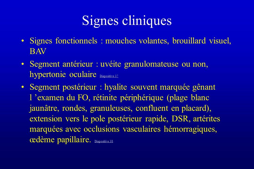 Signes cliniques Signes fonctionnels : mouches volantes, brouillard visuel, BAV.