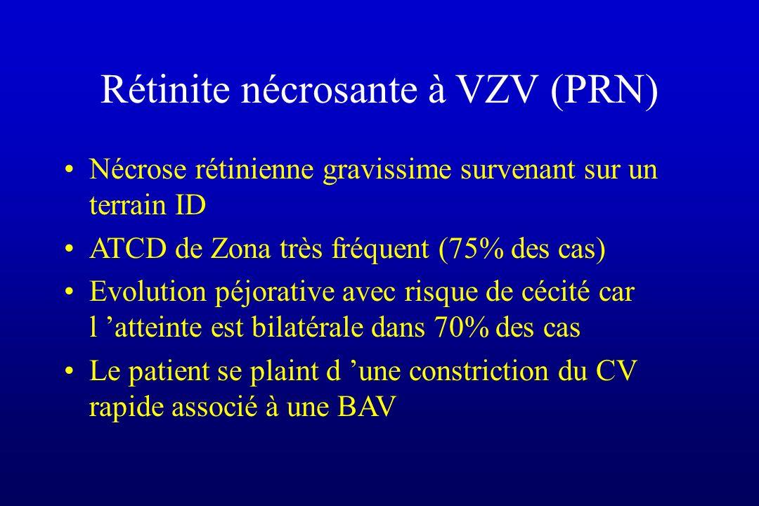 Rétinite nécrosante à VZV (PRN)