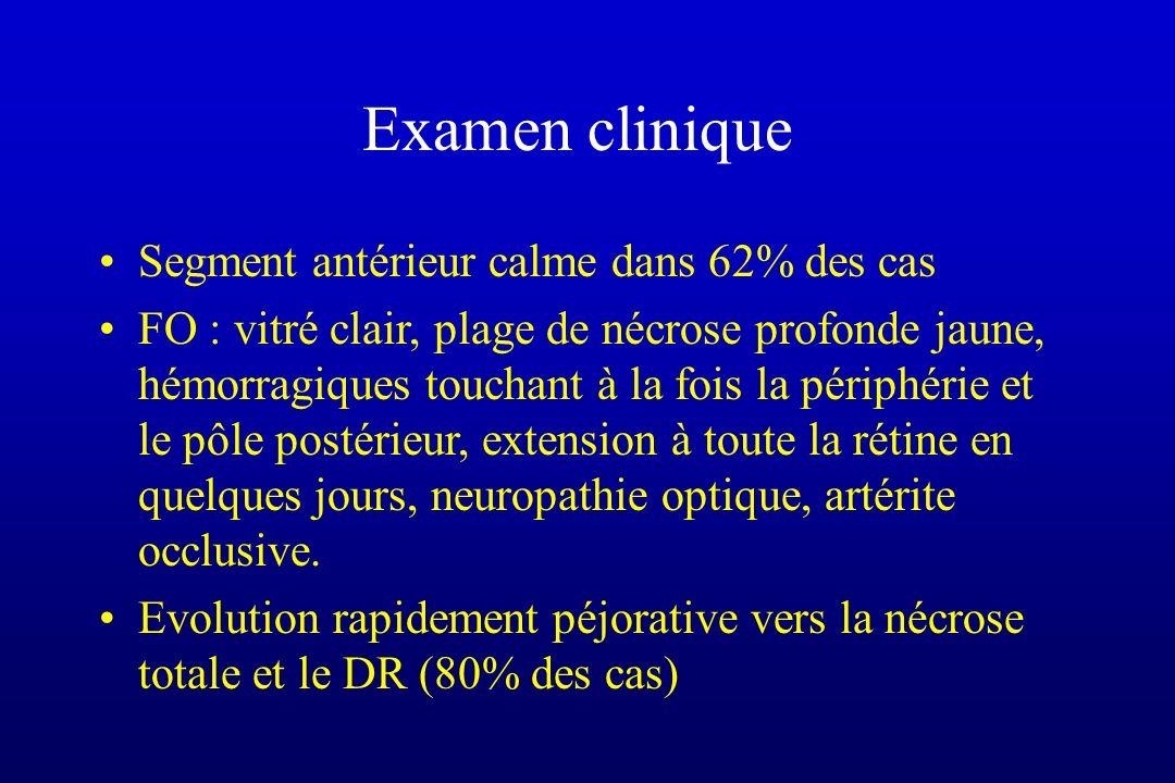 Examen clinique Segment antérieur calme dans 62% des cas