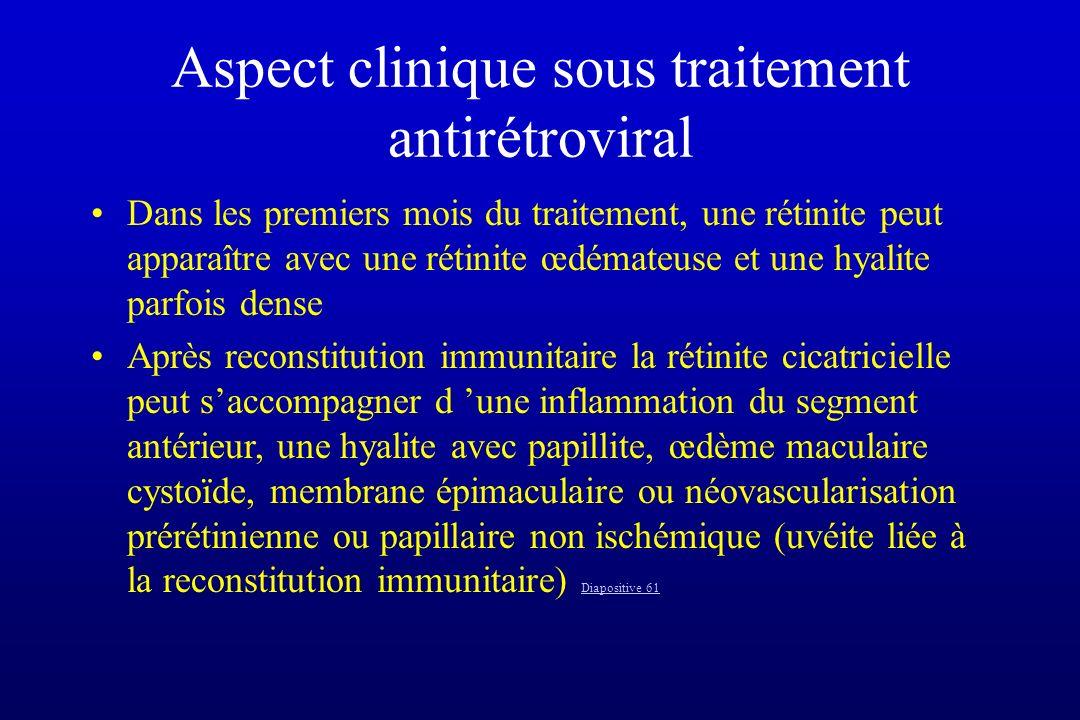 Aspect clinique sous traitement antirétroviral