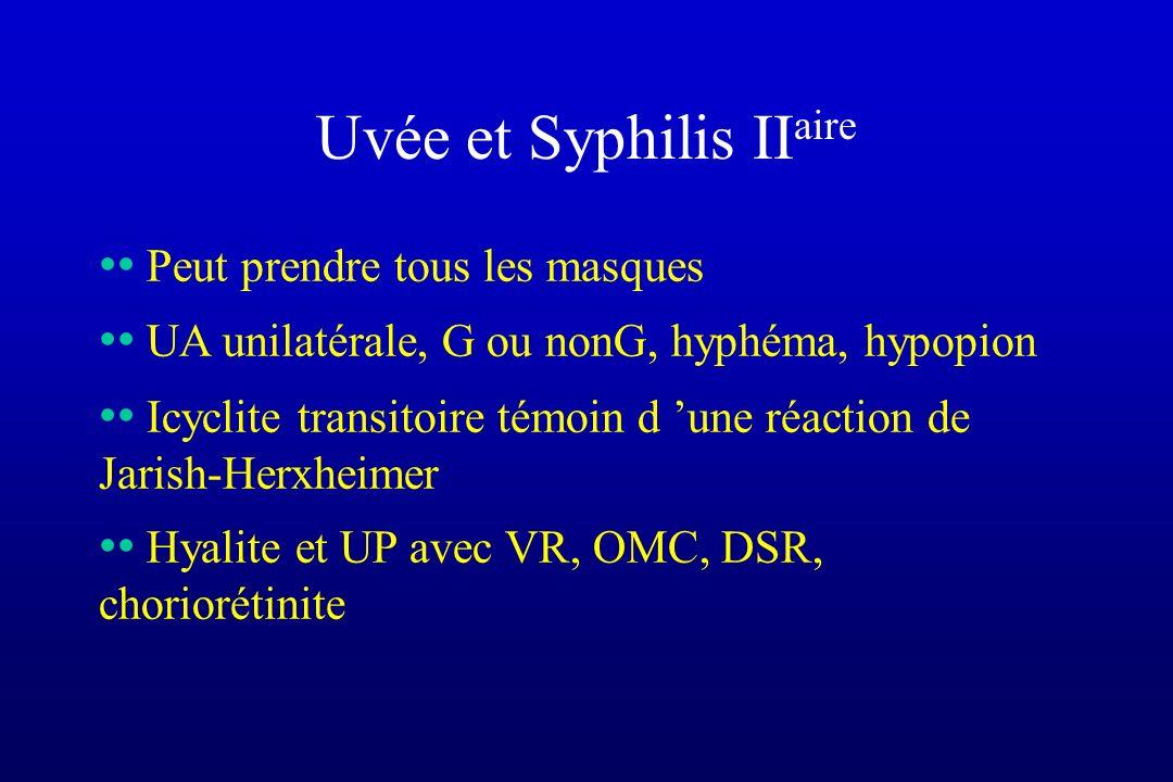 Uvée et Syphilis IIaire