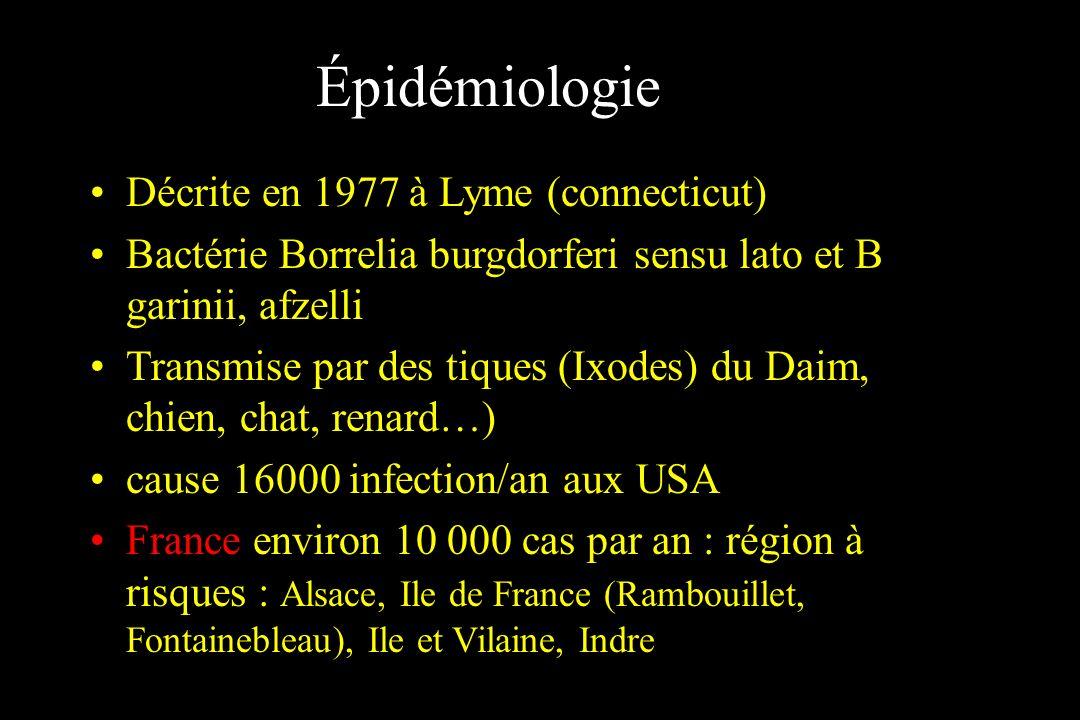 Épidémiologie Décrite en 1977 à Lyme (connecticut)