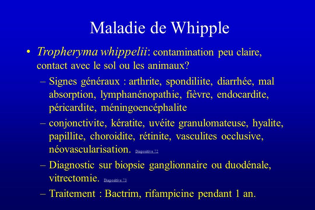 Maladie de Whipple Tropheryma whippelii: contamination peu claire, contact avec le sol ou les animaux