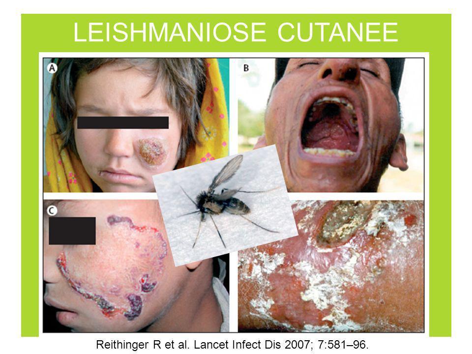 Reithinger R et al. Lancet Infect Dis 2007; 7:581–96.