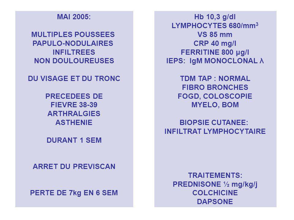 INFILTRAT LYMPHOCYTAIRE