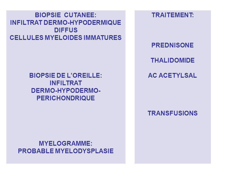 INFILTRAT DERMO-HYPODERMIQUE DIFFUS CELLULES MYELOIDES IMMATURES