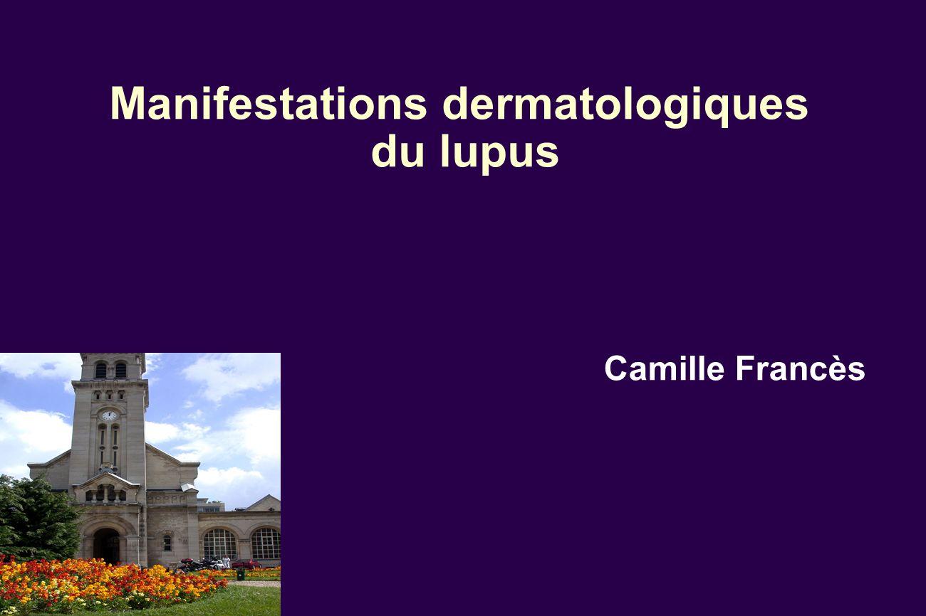 Manifestations dermatologiques du lupus