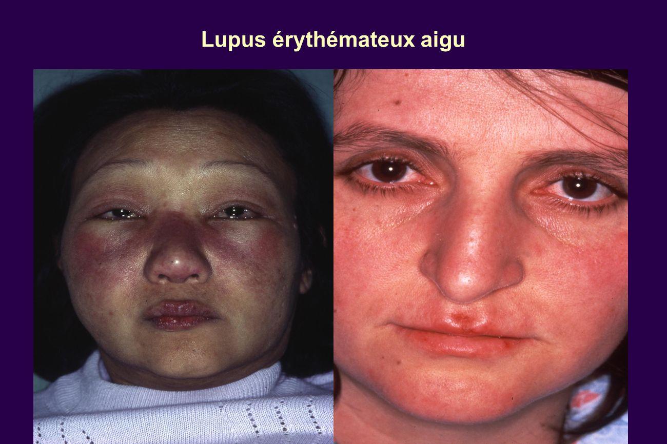 Lupus érythémateux aigu