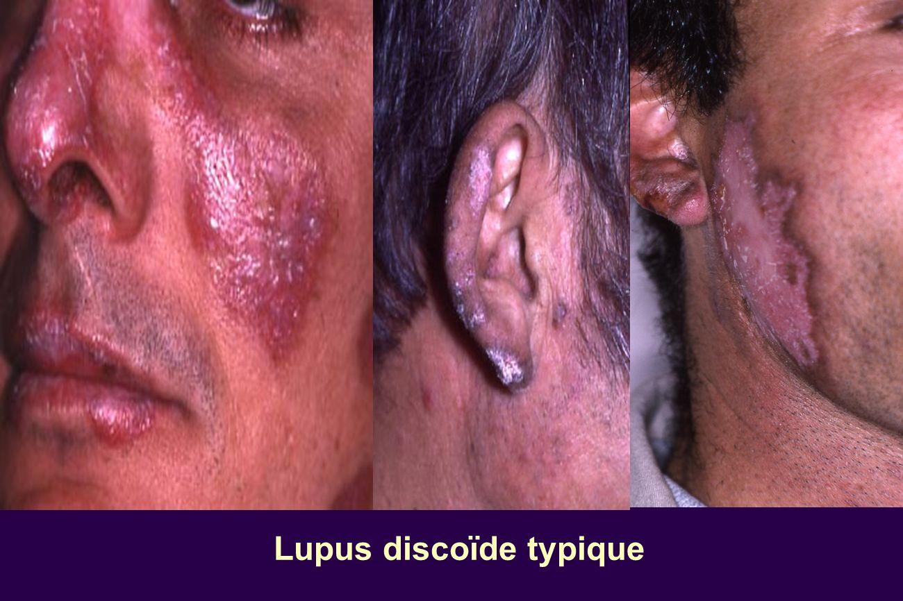 Lupus discoïde typique