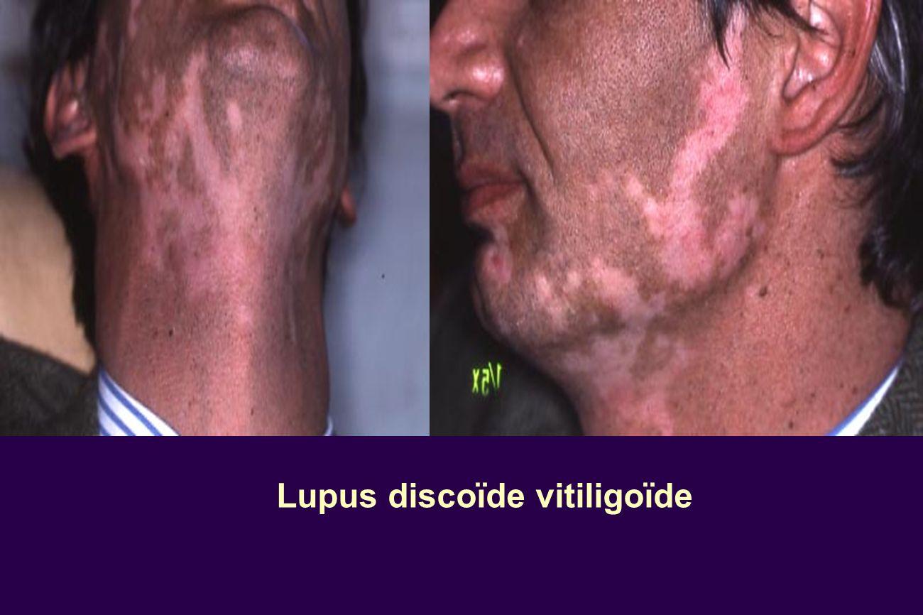 Lupus discoïde vitiligoïde