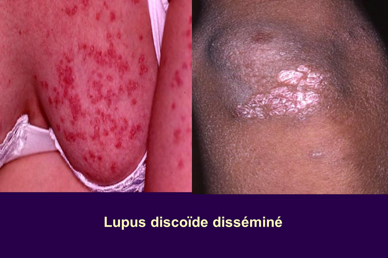 Lupus discoïde disséminé
