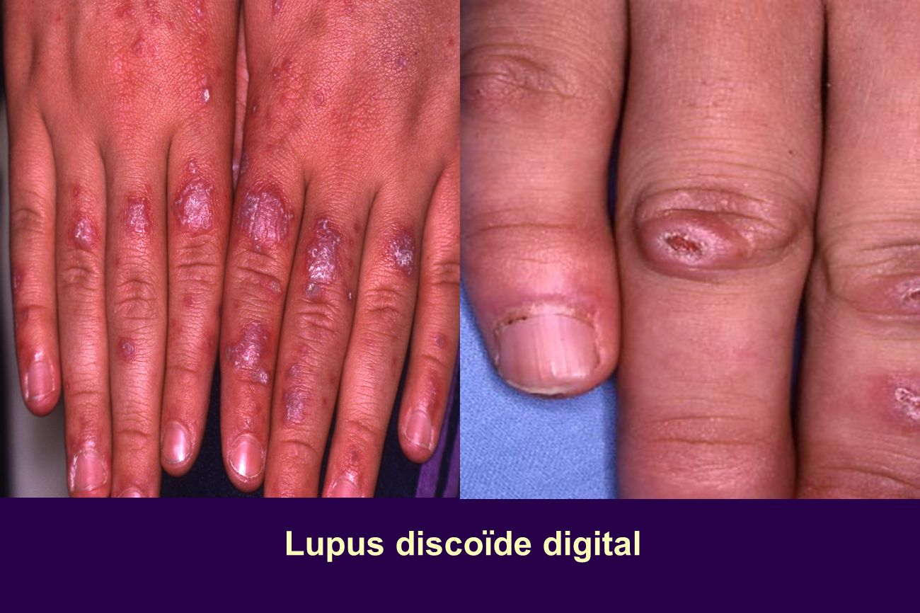 Lupus discoïde digital