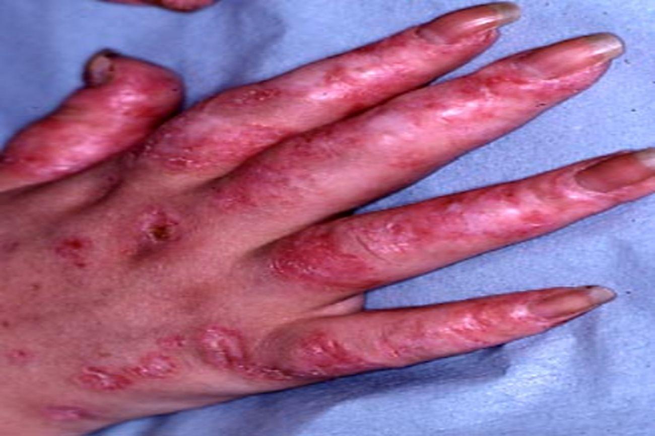 Lupus discoïde acral