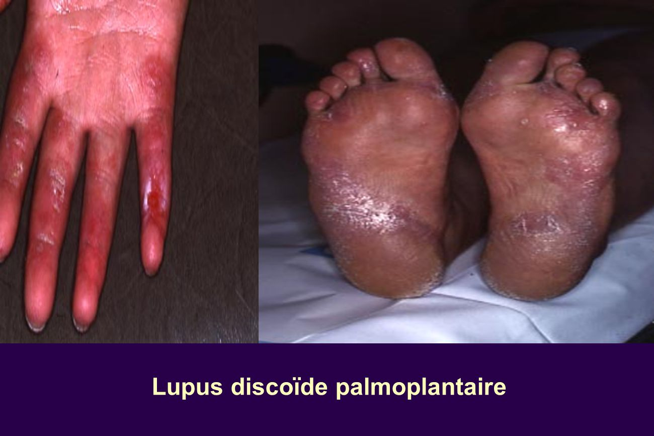 Lupus discoïde palmoplantaire