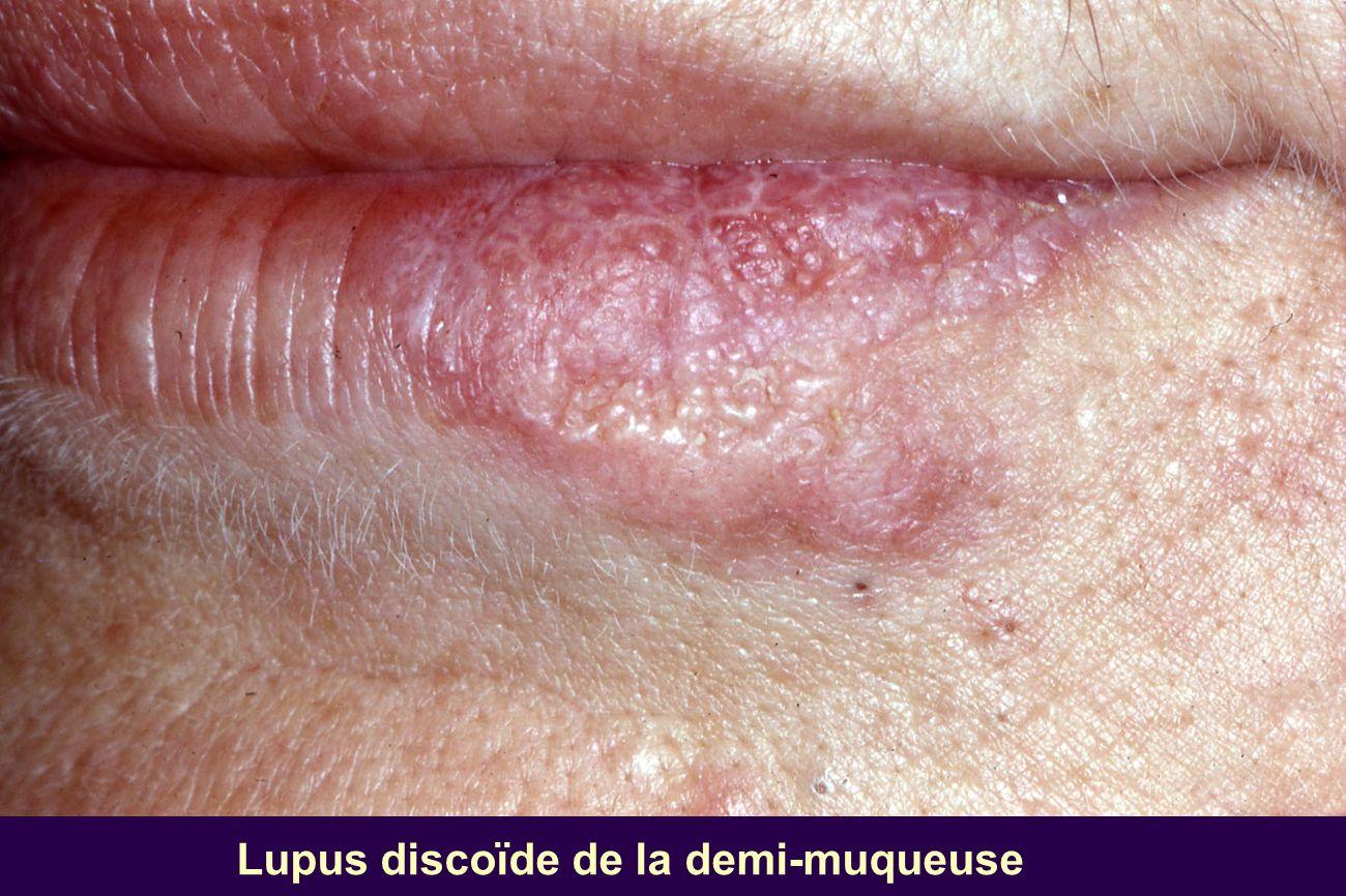 Lupus discoïde de la demi-muqueuse