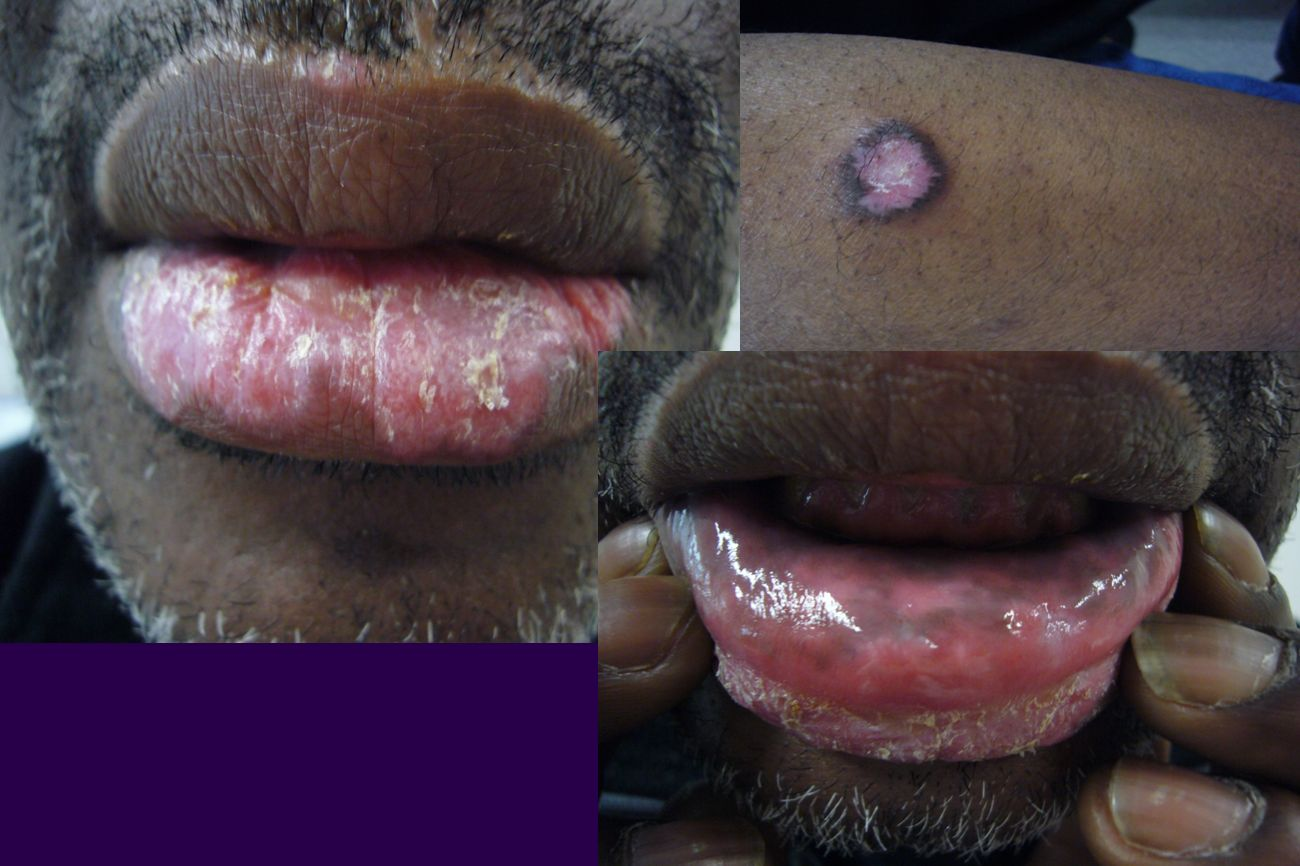 Lupus discoïde lichénoïde buccal