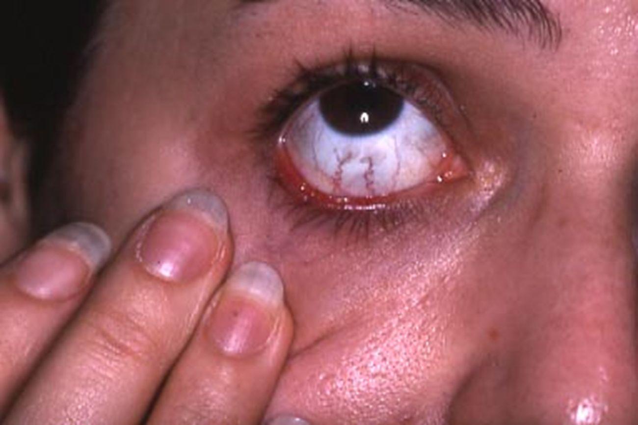 Lupus discoïde conjonctival