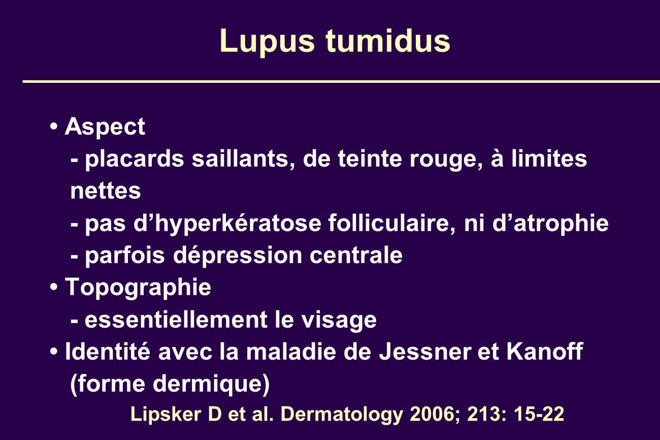 Lipsker D et al. Dermatology 2006; 213: 15-22