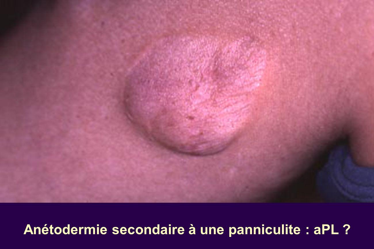 Anétodermie secondaire à une panniculite : aPL