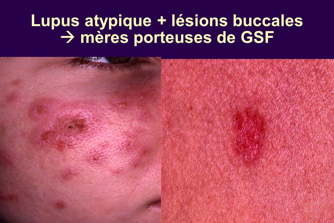 Lupus atypique + lésions buccales  mères porteuses de GSF