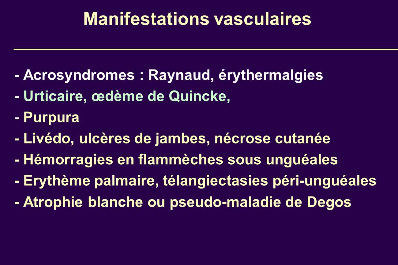 Manifestations vasculaires