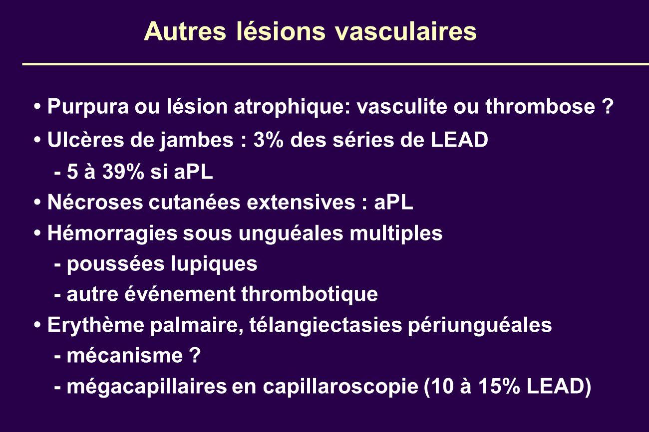 Autres lésions vasculaires