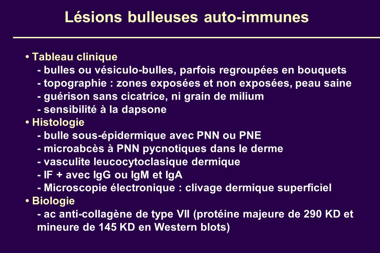 Lésions bulleuses auto-immunes