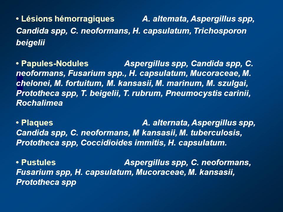• Lésions hémorragiques. A. altemata, Aspergillus spp, Candida spp, C