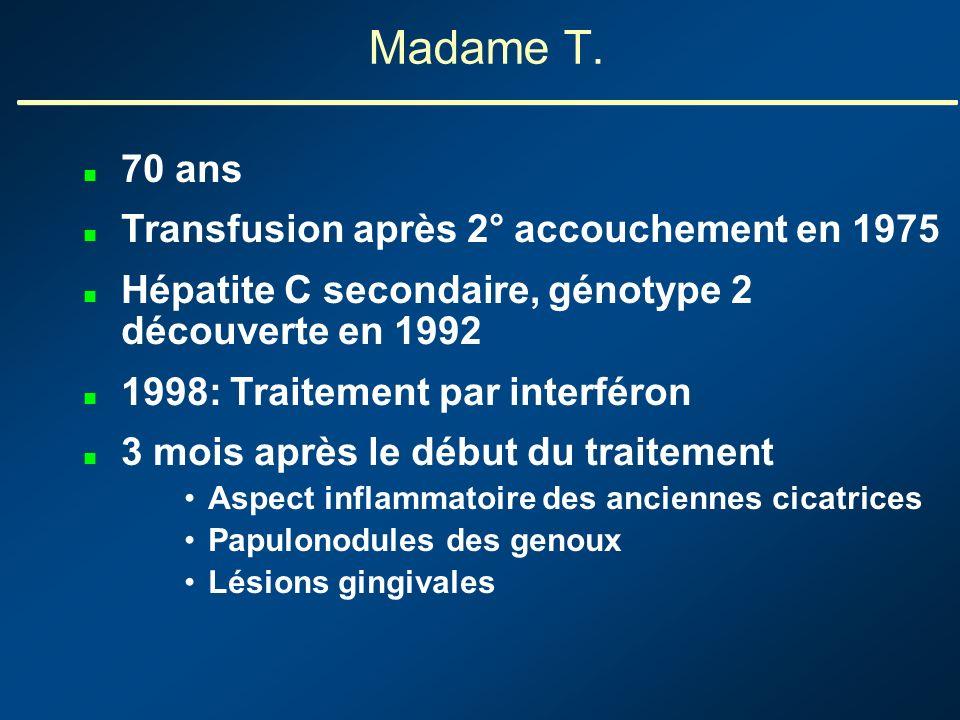 Madame T. 70 ans Transfusion après 2° accouchement en 1975