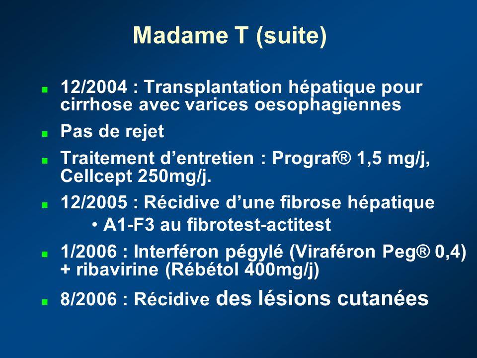 Madame T (suite) 12/2004 : Transplantation hépatique pour cirrhose avec varices oesophagiennes. Pas de rejet.
